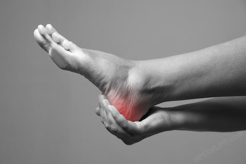 A heel spur can cause a tremendous amount of pain and limit exercise and movement. Thankfully you can reduce the pain of heel spurs with these at home remedies. Heel Spur Relief | Heel Spur Remedies #healthyliving #heelspurs #workouttips #exercise #workouts #painrelief